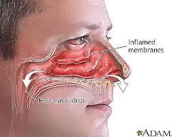 Obat Sinusitis Kronis Alami