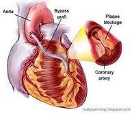 Obat Jantung Bocor Alami